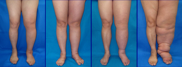 Lymphedema's appearance